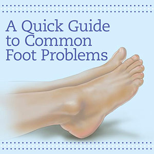 A quick guide to common foot problems