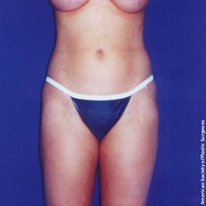 Girl after tummy tuck