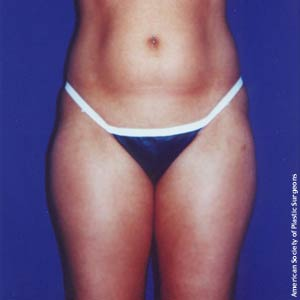 girl before tummy tuck
