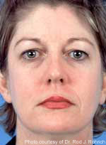 Blonde Woman Before Chemical Peel