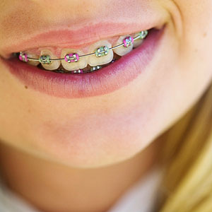 The Facts About Dental Braces For Kids